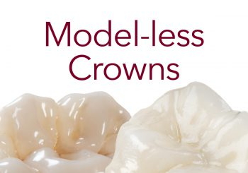 Model-less Crowns